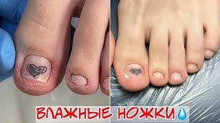 Гидрозная стопа Почему врастают ногти на ногах