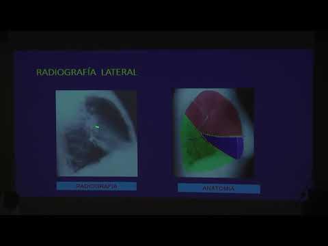 11 - Radiografia torax Dr Ivan Stand