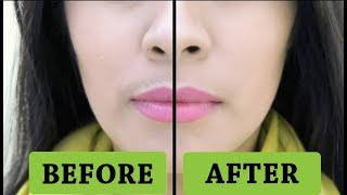Home Remedies To Get Rid Of Girl Mustache At Home