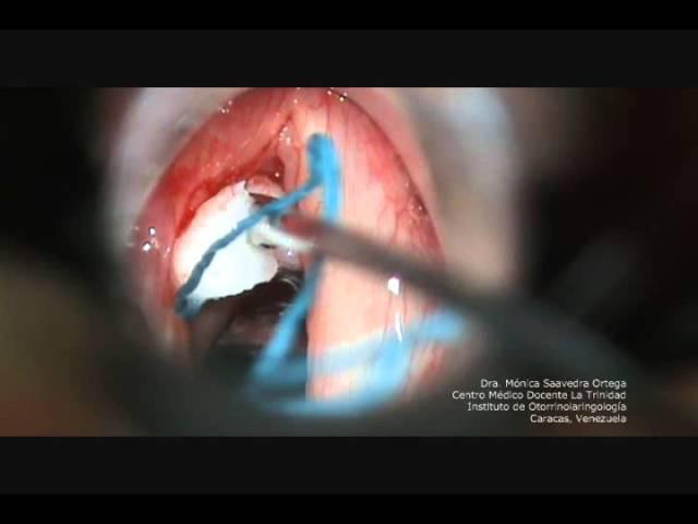 polipos cuerdas vocales cirugia