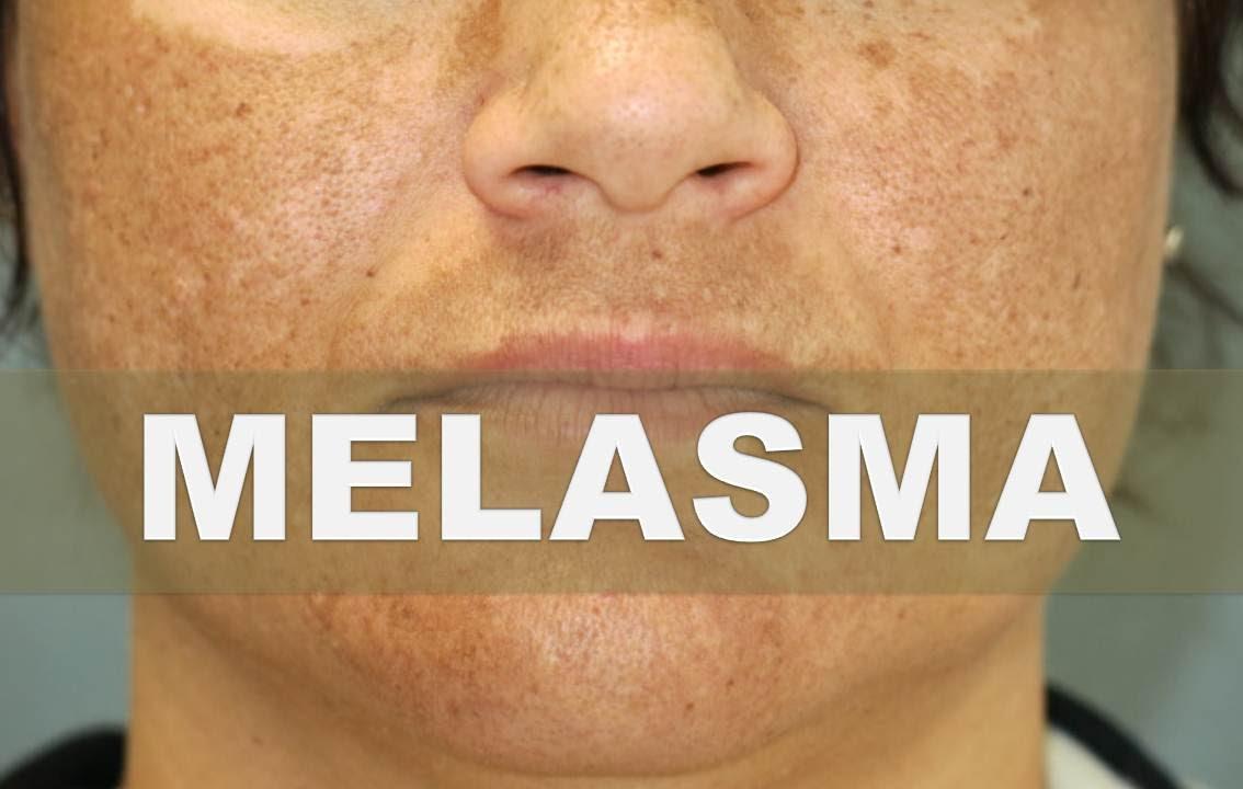 Remedios caseros para el melasma como eliminar la for Productos para eliminar pececillos de plata