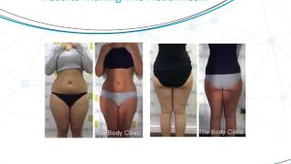 3D- lipo Before & After Results.