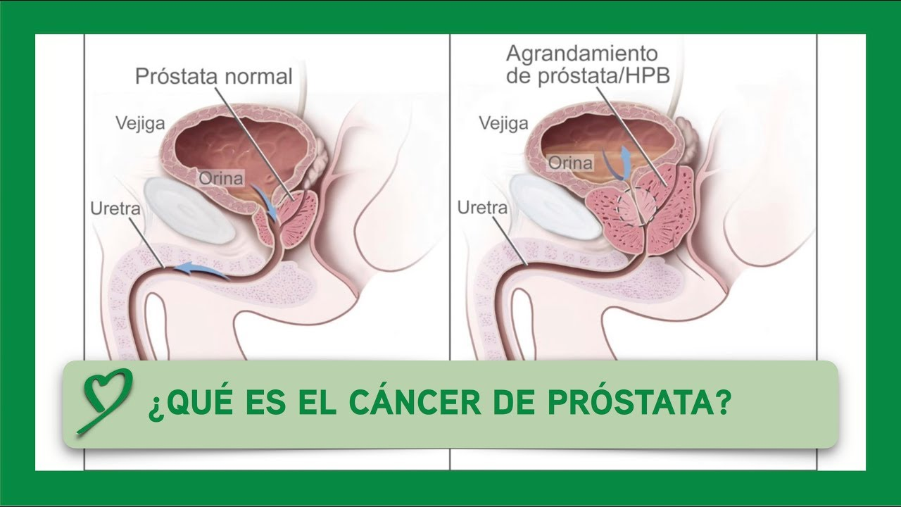 prostata dura que significado