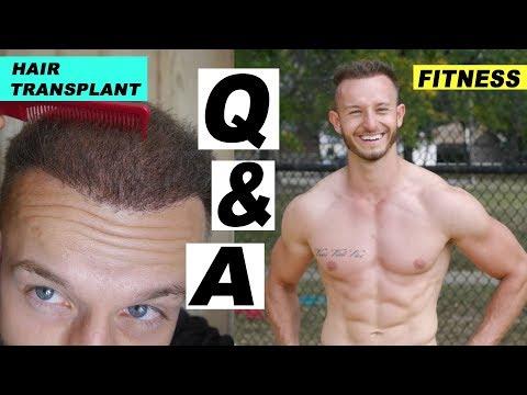 Q&A with Matt on Hair Transplant, Fitness, Life
