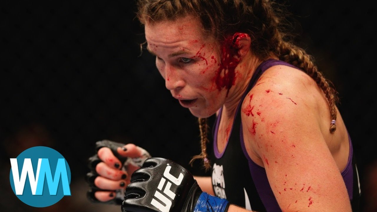 Download Another Top 10 HORRIFIC Sports Injuries
