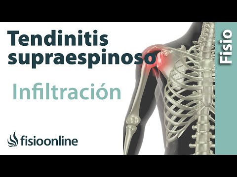 Tendinitis de hombro o supraespinoso infiltraciones
