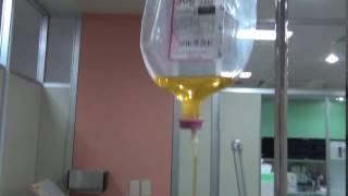 止血 アドナ トランサミン静脈注射