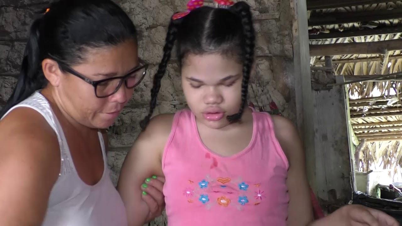 Entrega de uma cadeira de rodas a pequena Carol no Povoado Maranhão Novo