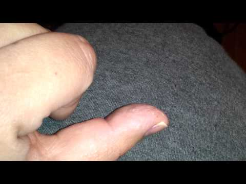 Nail fungus update and athletes feet solution
