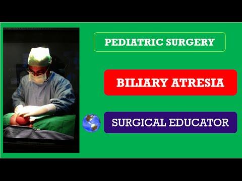 BILIARY ATRESIA / Obstructive Jaundice/  Pediatric Surgery