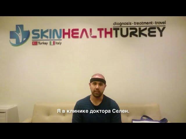 Пересадка Волос в Турции - Наг поциент рассказывает об операции и его приезда в нашу клинику