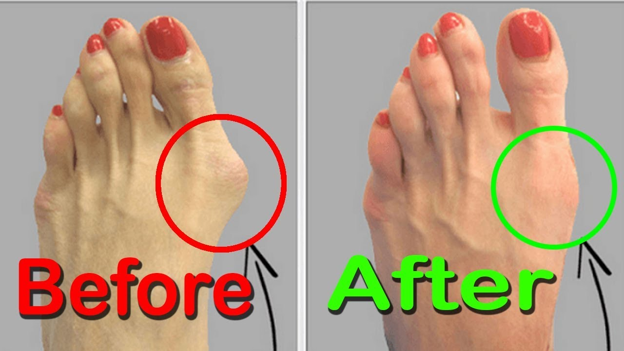 Bunion Removal - Home Remedies For Bunions Treatment