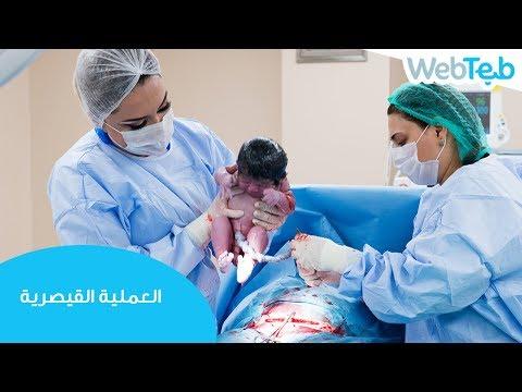 العملية القيصرية - ويب طب