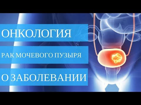 РАК МОЧЕВОГО ПУЗЫРЯ - всё что нужно знать о заболевании в видео!