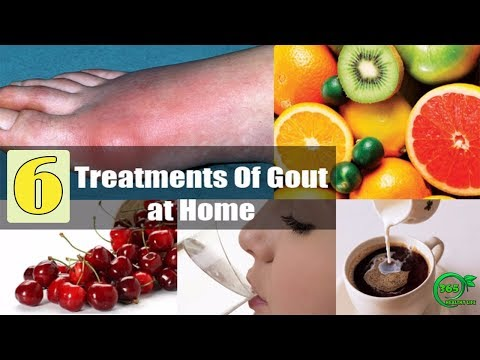 🍀[GOUT TREATMENT] 6 Natural Recipes and Remedies to Treat Gout at Home HEALTHY LIFE | 365