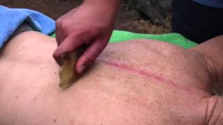 Gua - Sha Chinese Massage Therapy | Chinese traditional medicine
