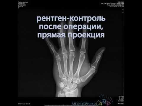 Лечение переломо-вывиха 4-го пальца