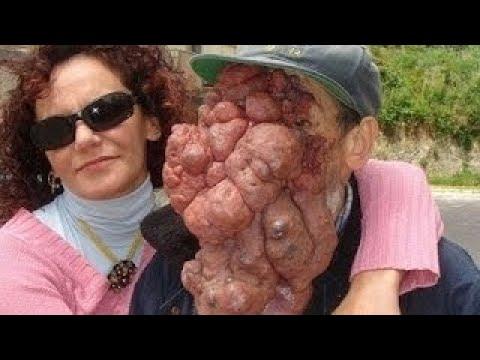 【奇病・難病】顔半分が巨大な腫瘍で覆われた人々 ≪閲覧注意 ...