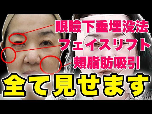 フェイスリフト・頬の脂肪吸引・切らない眼瞼下垂【リアル手術と本音の感想】