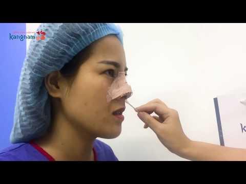 Cách chăm sóc mũi sau khi nâng để có dáng mũi đẹp nhất
