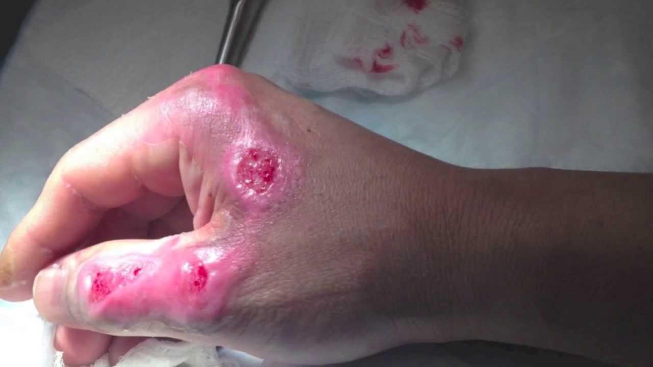 2nd degree burn vlog no3 healing process