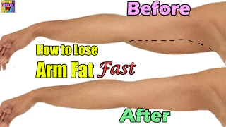 How Lose Arm Fat Fast
