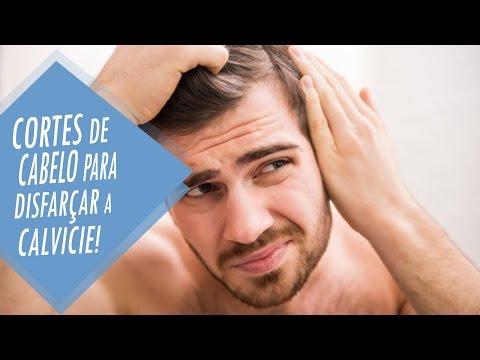 Cortes De Cabelo Para Disfarçar Calvície Youtube