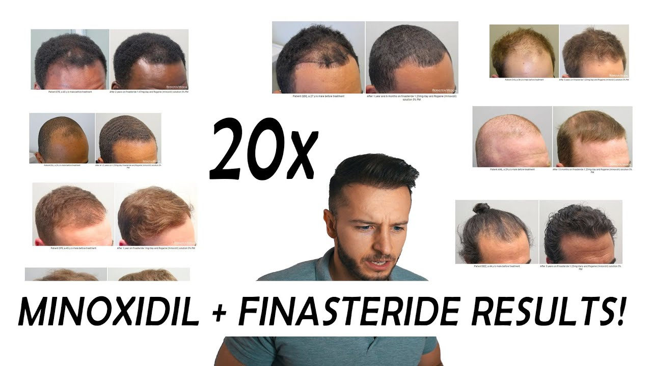 20 Finasteride And Minoxidil Before And After Results Nw2 Nw5 6 Youtube