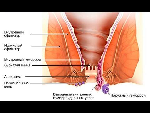 Воспаление геморроидальных узлов: (как снять) - лечение, фото