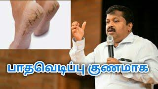 பாதவெடிப்பு குணமாக இயற்கை வழி மருத்துவம் | Dr.Sivaraman speech on Foot cracks treatment