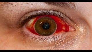 Los en ojos rojo sanguíneo de cabeza vaso y dolor
