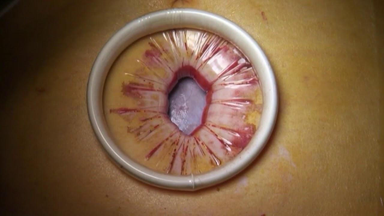 giant ovarian cyst laparoscopic management youtube