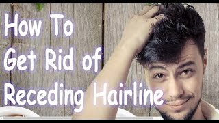 How To Get Rid of Receding Hairline - Natural Hairline Receding Treatment