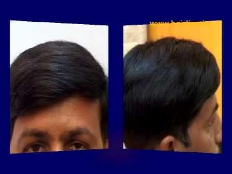 Hair replacement hair bonding youtube hair replacement hair bonding pmusecretfo Image collections