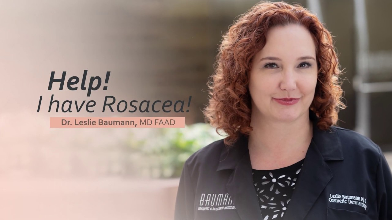 Help I have Rosacea!