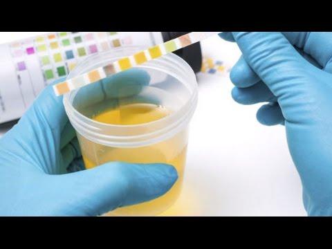 terapia para la prostatitis por enterococos en youtube