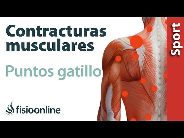 Contractura muscular espalda baja sintomas