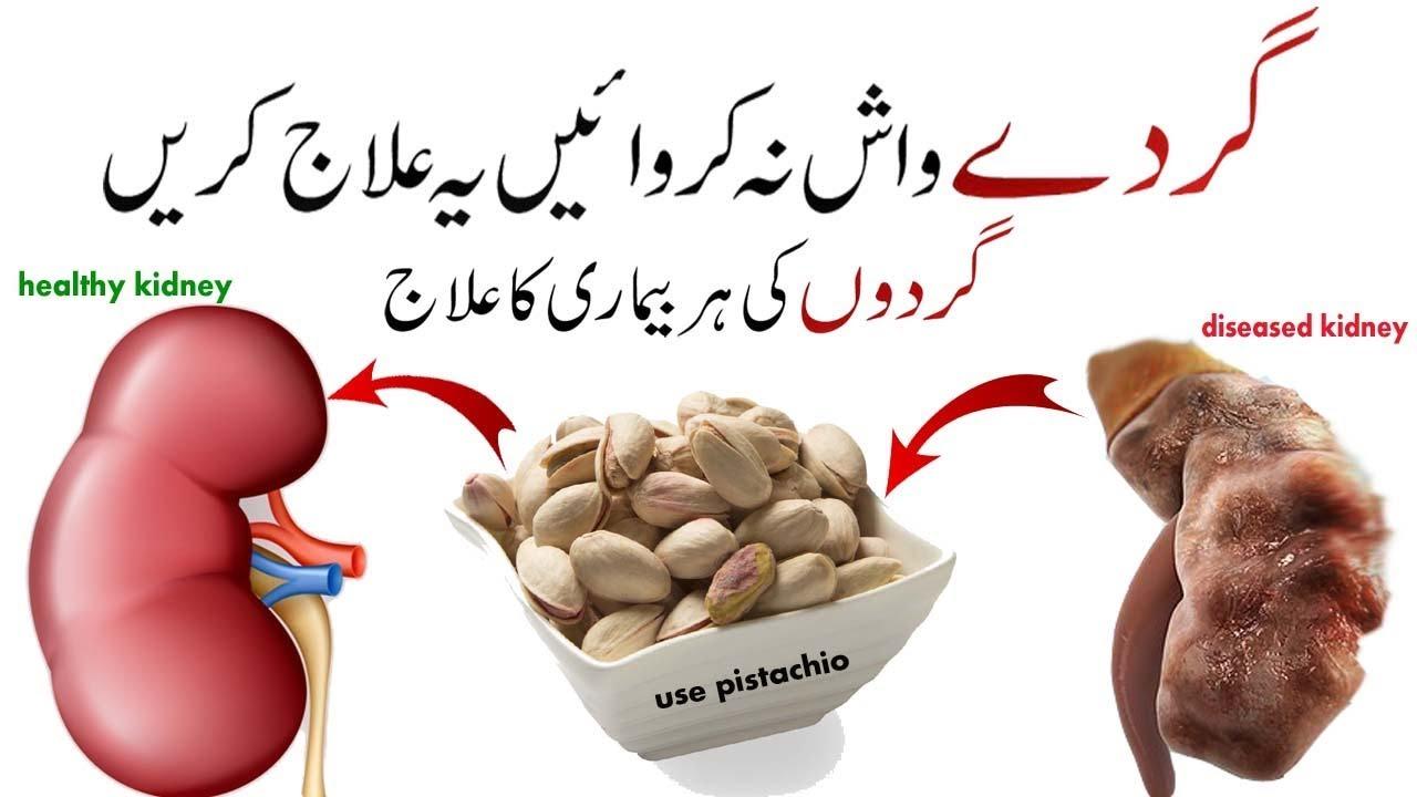 Kidney Disease Symptoms And Treatment In Urdu Kidney Ka Ilaj Kidney Problems Ka Ilaj By Taskeen Hayder