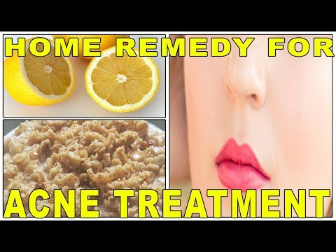 ACNE TREATMENT WITH LEMON JUICE AND OATMEAL || OATMEAL FACE MASK ||SIMPLE HOME REMEDY|