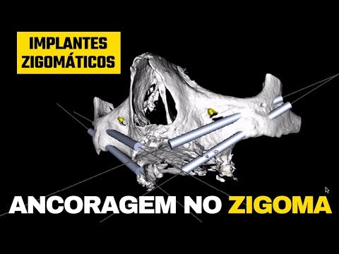 Ancoragem do Implante Zigomático no corpo do osso zigomático (na prática)
