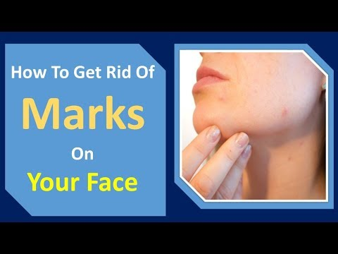 how to get rid of marks on your face | lemon juice & Aloe Vera  Home Remedy