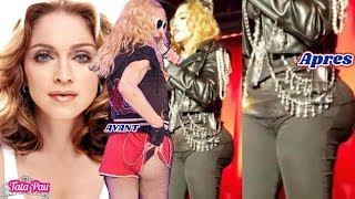 Madonna choque  ses fans !Elle augmente ses Deringo Comme KIM KARDASHIAN ????????????