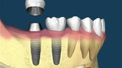 Dental Implants in Swift Current