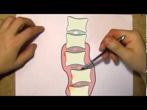 видео: Как жить с остеохондрозом полноценной жизнью Что такое остеохондроз на самом деле
