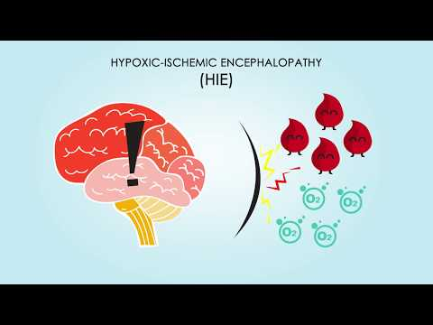 Hypoxic-Ischemic Encephalopathy: About, Treatments, & Causes