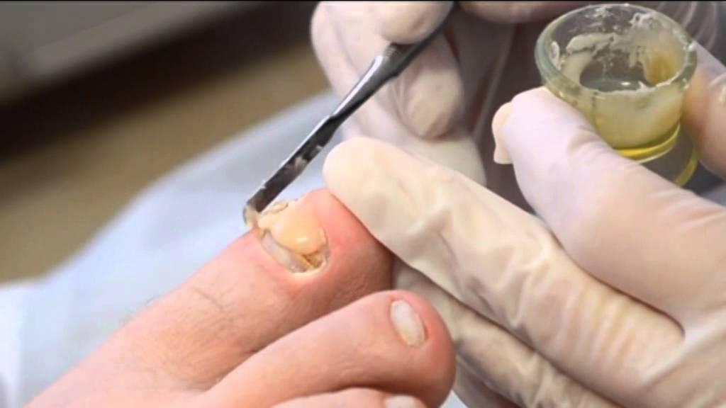 Как сделать чтобы ногти на ногах выросли 853