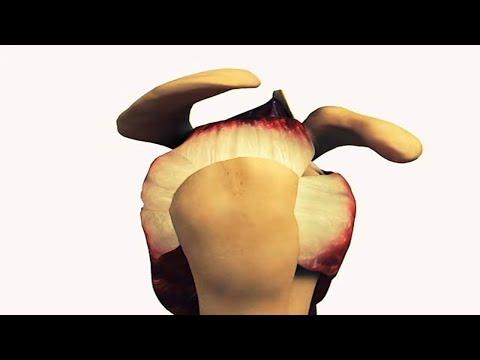 Shoulder acromion: Type I, II, III