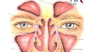 Leacuri, hapuri si pilule - sinuzita