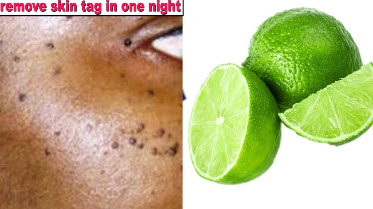 IN 1 NIGHT REMOVE SKIN TAG SKIN MOLE OVERNIGHT APPLY LEMON