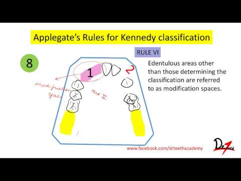 Kennedys classification, Applegates rules- Easy! - Full download